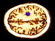 glioma-tumor-4a5408ebd9dacbe36af7c7e8a31cf804b9d572c6-s700-c85