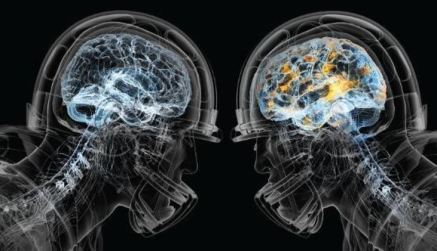 nfl-and-brain-injury-concussion-2
