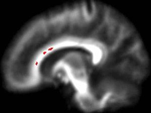 brain1-8505fb9021e5becd4ddb9a6db7244b46b7aa3994-s300-c85