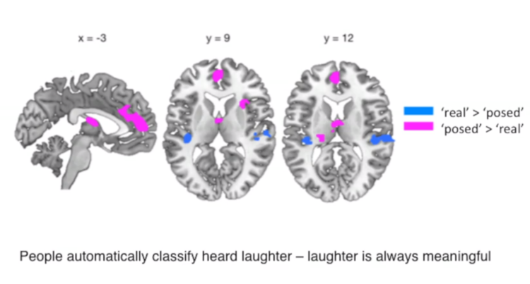 Dissecting the Meaning of Laughter